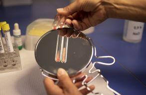Megvizsgáltak 47 embert, hogy megtudják van-e mikrómûanyag a szerveikben. Volt.