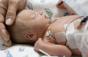 A kórházak hiányos felszereltsége miatt évente közel 1.400 csecsemõ hal meg Romániában