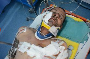 Ismét medvetámadás történt Hargita megyében