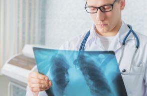 Képviselõház: gyógyulásukig szabadságra és járandóságra jogosultak a tuberkulózisban szenvedõk