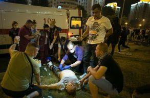 Az általuk ellátott sebek fényképeivel vonultak utcára a fehérorosz orvosok