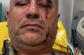 """""""Megöllek!"""" - üvöltötték a fatolvajok, majd brutálisan összevertek egy civil aktivistát és két újságírót az erdõben"""