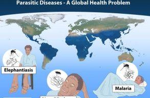 Mal�ria �s fon�lf�rgek okozta fert�z�sek �j gy�gym�djai�rt kapt�k az orvosi Nobel-d�jat